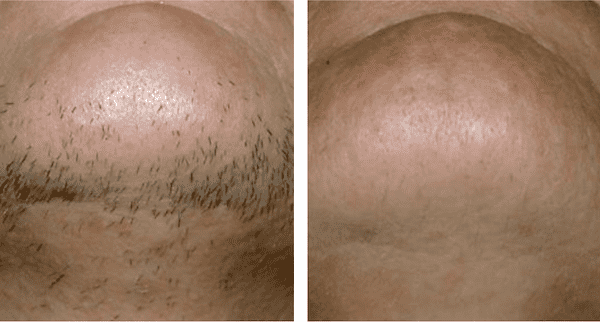 Laser Hair Removal in Clitheroe, Lancashire